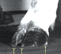KRAIBURG weiche Laufflächen Fußung innen Kuhklaue