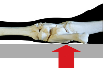 Formation of tarsal lesions